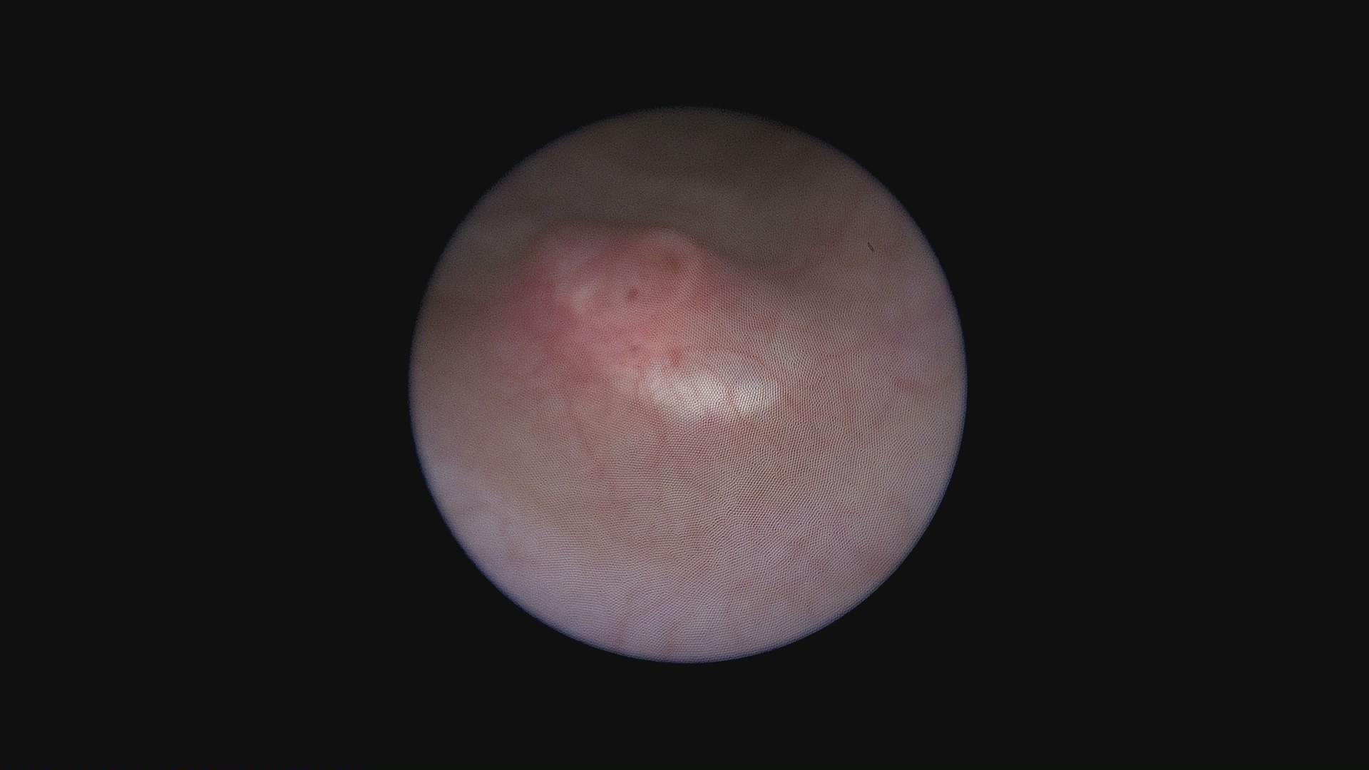 Vezikoureteralni refluks (VUR) kod dece - Nakon korekcije refluksa ubrizgavanjem endopaste