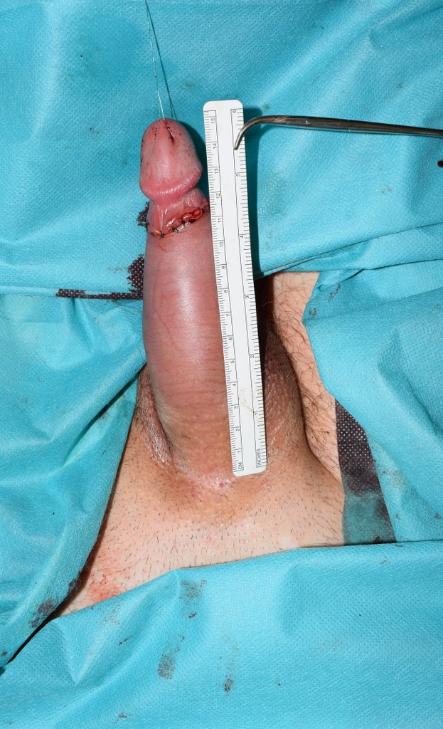 Penile width after the surgery