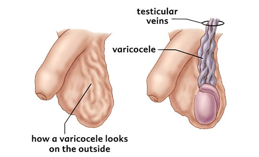Diagnosticul varicocelului
